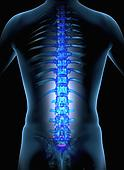 Spinal Cord Injury Dallas