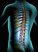 spinal cord injury help in dallas Fort worth